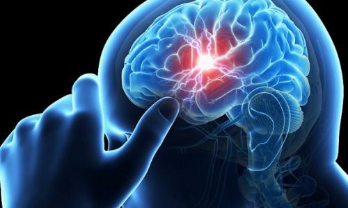 Cảnh giác với bệnh gây đột quỵ não ở phụ nữ trẻ