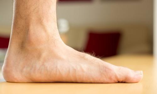 Cha mẹ nên kiểm tra bàn chân bẹt cho trẻ trước 2 tuổi