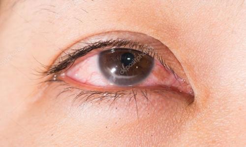 Phòng tránh mù lòa do bệnh glôcôm