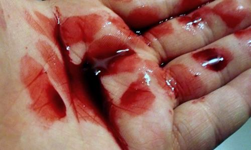 Những điều cần biết về thiếu máu