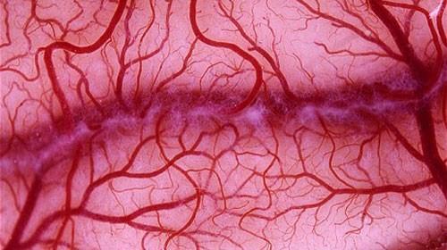 Những điều cần biết về bệnh huyết khối tĩnh mạch sâu