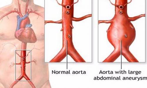 Nguy cơ tử vong do phình động mạch chủ bụng