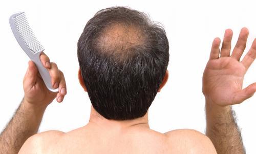 Sử dụng tế bào gốc trị hói đầu