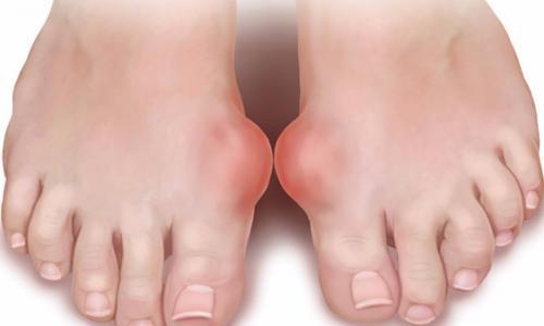 Ứng phó với bệnh gout