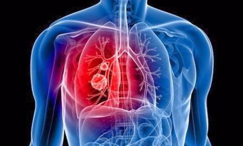 Cảnh báo: Nguy cơ khản tiếng do bệnh phổi tắc nghẽn mạn tính