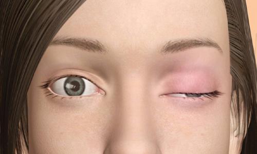 Triệu chứng và cách sử dụng thuốc trong bệnh lý nhược cơ như thế nào?
