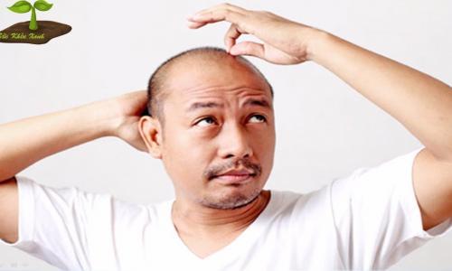 Chữa hói đầu, thuốc nào hiệu quả?
