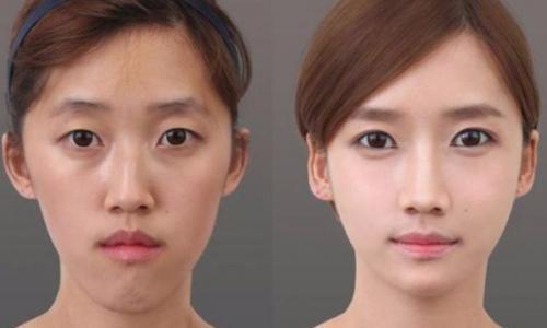 Sửa mí mắt, nâng mũi : Điều gì làm nên sự kỳ diệu?