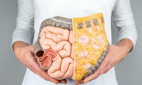 Chuyên gia dinh dưỡng tư vấn chế độ ăn cho người ung thư đường tiêu hóa
