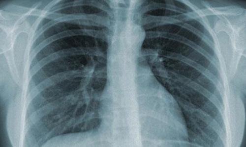Vitamin B có thể làm tăng nguy cơ ung thư phổi ở nam giới