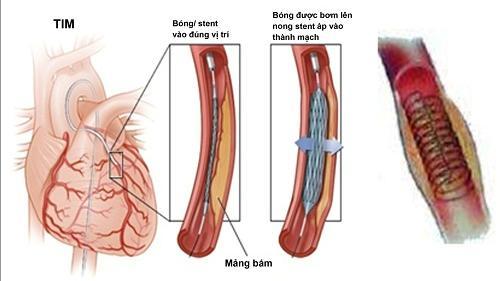 Hẹp động mạch vành, khi nào là nguy hiểm?