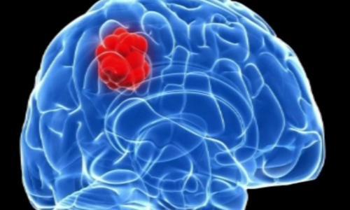 Vaccine tăng thời gian sống của người u não