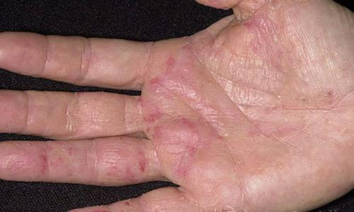 Có thuốc chữa eczema bàn tay?