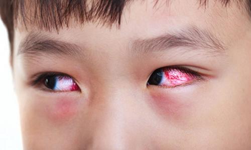 Những bệnh về mắt liên quan tới công nghệ ở thanh thiếu niên