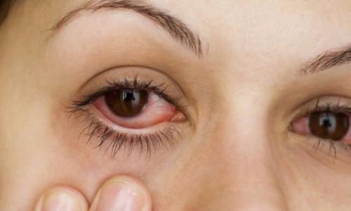 Sai lầm khi nghĩ đeo kính râm phòng ngừa được lây lan bệnh đau mắt đỏ