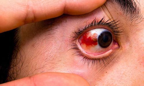 Chảy máu mắt vì xem bóng đá liên tục nhiều giờ