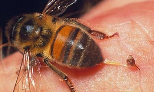 Ong đốt và cách sơ cứu đúng