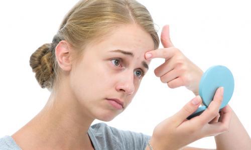 Cách nào chữa viêm da tiết bã nhờn?