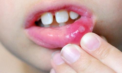 5 Bài thuốc trị loét miệng
