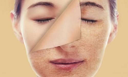 Bác sĩ da liễu cảnh báo những ngộ nhận tai hại về lột trắng da