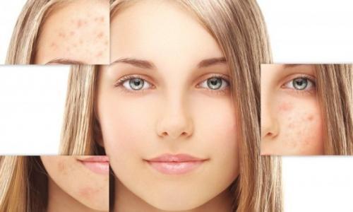 Những mẹo hay điều trị nám da
