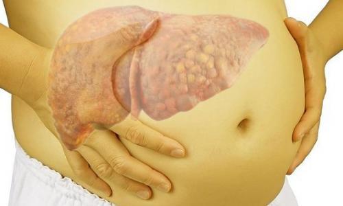Cách ăn để ngừa và làm chậm xơ gan