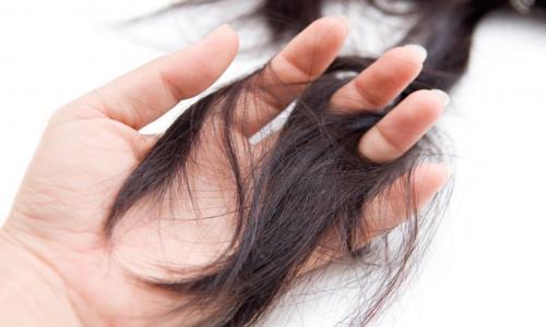 Thuốc chữa rụng tóc