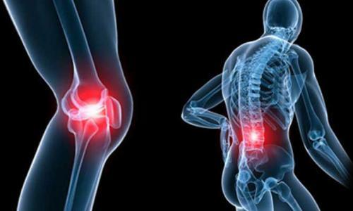 Thiếu vitamin D gây đau xương khớp