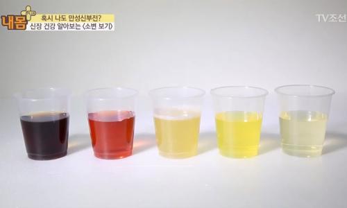 Nước tiểu đổi màu sau khi dùng thuốc có nguy hiểm?