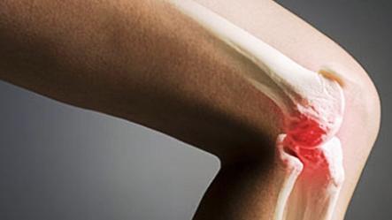 Trị viêm xương tủy: kháng sinh nào tốt?