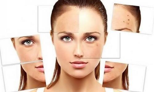 Sạm da có chữa khỏi không?