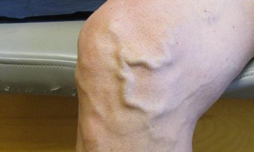 Chân nổi gân xanh và mạch máu nhỏ, bệnh gì?