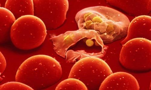 Bệnh tan huyết bẩm sinh có đáng lo?