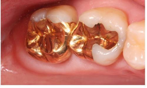 Vật liệu hàn răng loại nào là tốt?