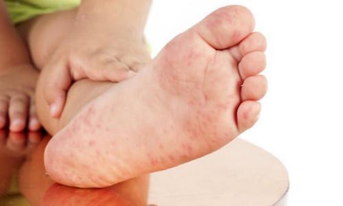 Ngứa lòng bàn tay chân chữa thế nào?