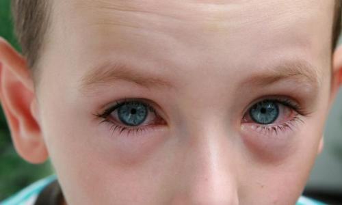 Vì sao mắt bị dị ứng?