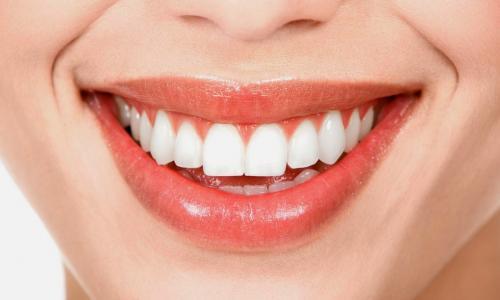 Nguyên nhân gây u răng