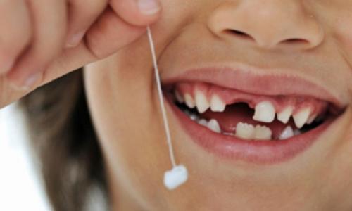 Răng sữa bị sâu có phải nhổ?