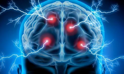 BV TƯ Cần Thơ: Cứu sống nữ bệnh nhân đột quỵ não 40 tuổi