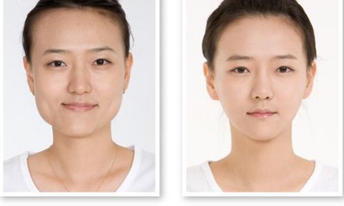 Ca vi phẫu ghép đoạn xương hàm tái tạo khuôn mặt thứ 500