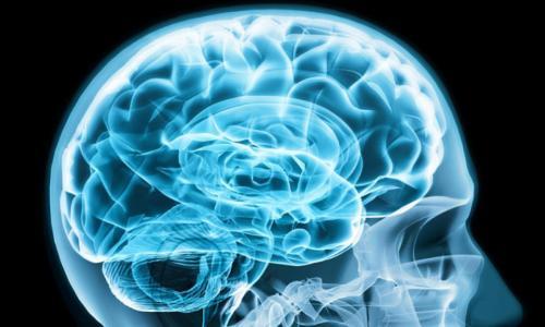 Tia laser nhỏ - Ứng dụng tiên phong cho người bệnh ung thư não sâu