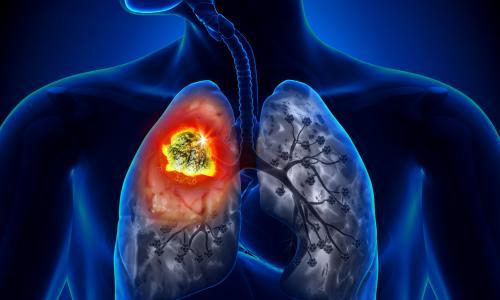 Những nguy cơ dẫn đến ung thư phổi