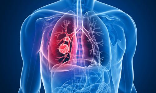 COPD – Phổi tắc nghẽn mãn tính