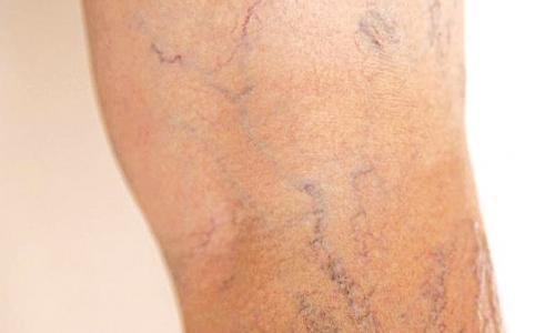 Suy tĩnh mạch chân (STMC)