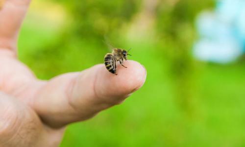 Chọc phá tổ ong, bé trai 5 tuổi suy đa phủ tạng nguy kịch