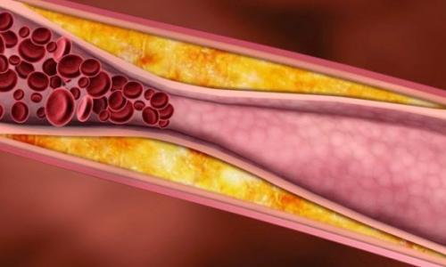 Tác dụng phụ của statin trị mỡ máu: Cân nhắc lợi ích và nguy cơ khi dùng