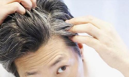 Món ăn - Thuốc ngăn ngừa bạc tóc