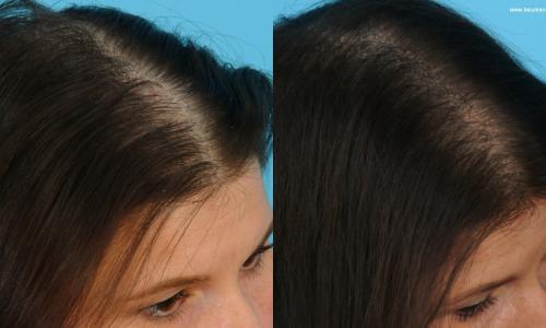 Mặt nạ giúp kích thích mọc tóc