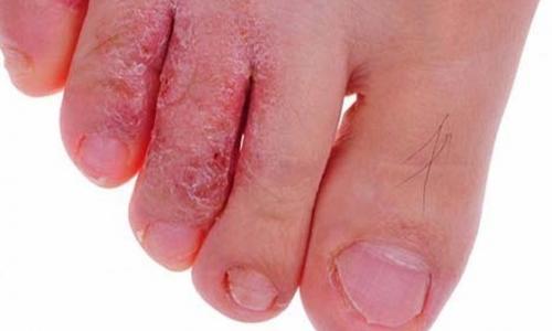 Thai phụ có được dùng thuốc trị nấm chân?