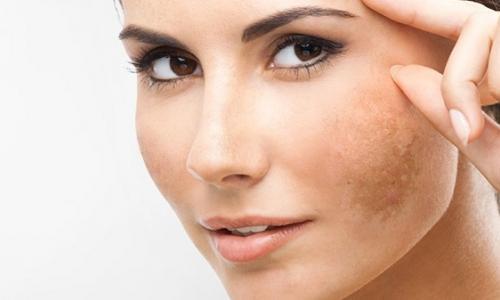 Điều trị bớt sắc tố da bẩm sinh và nám da
